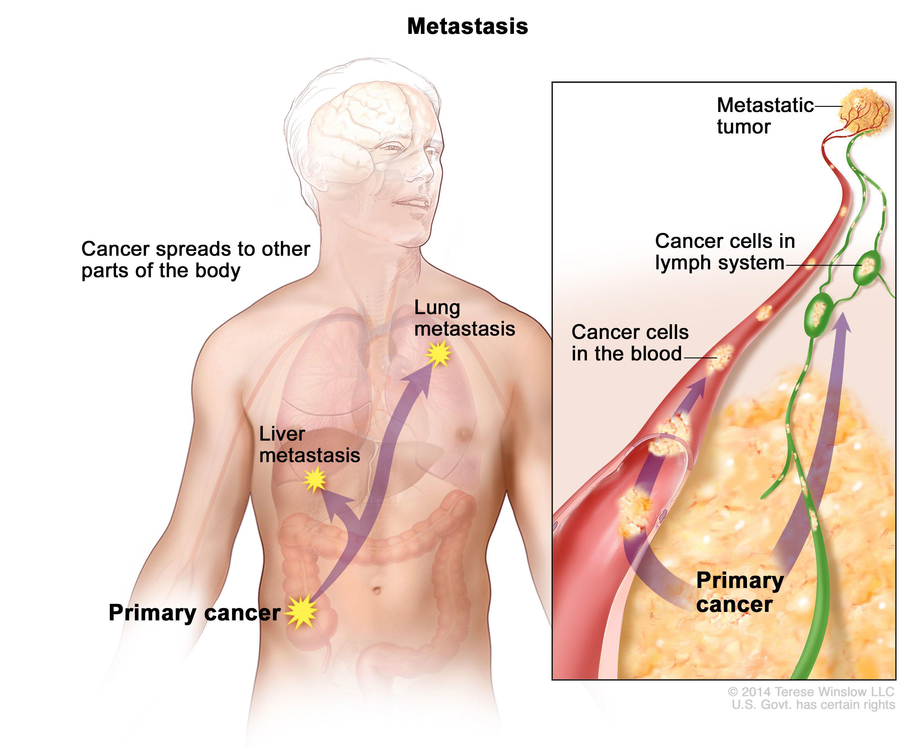 metastatic cancer cure)