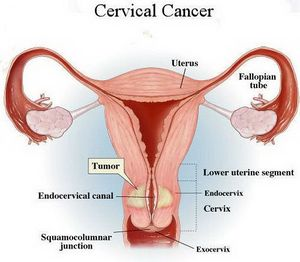 can hpv cause peritoneal cancer