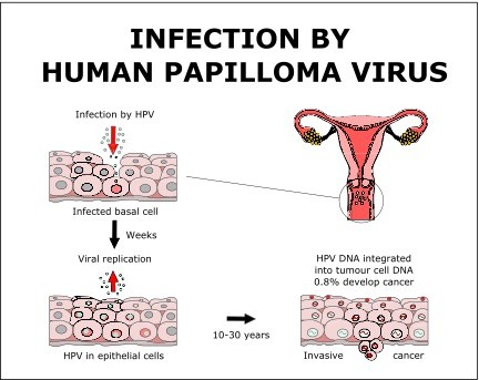 can human papillomavirus infection be cancerous