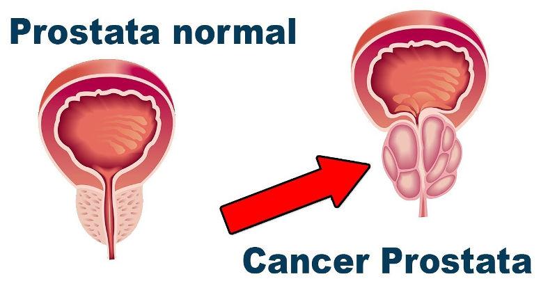 cancer a la prostata tratamiento)