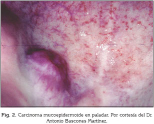 cancer bucal derivado de infecciones virales