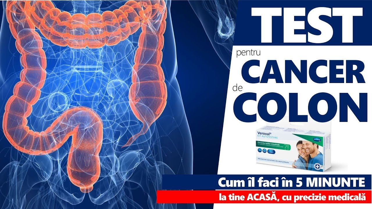 cancer colon sau colorectal