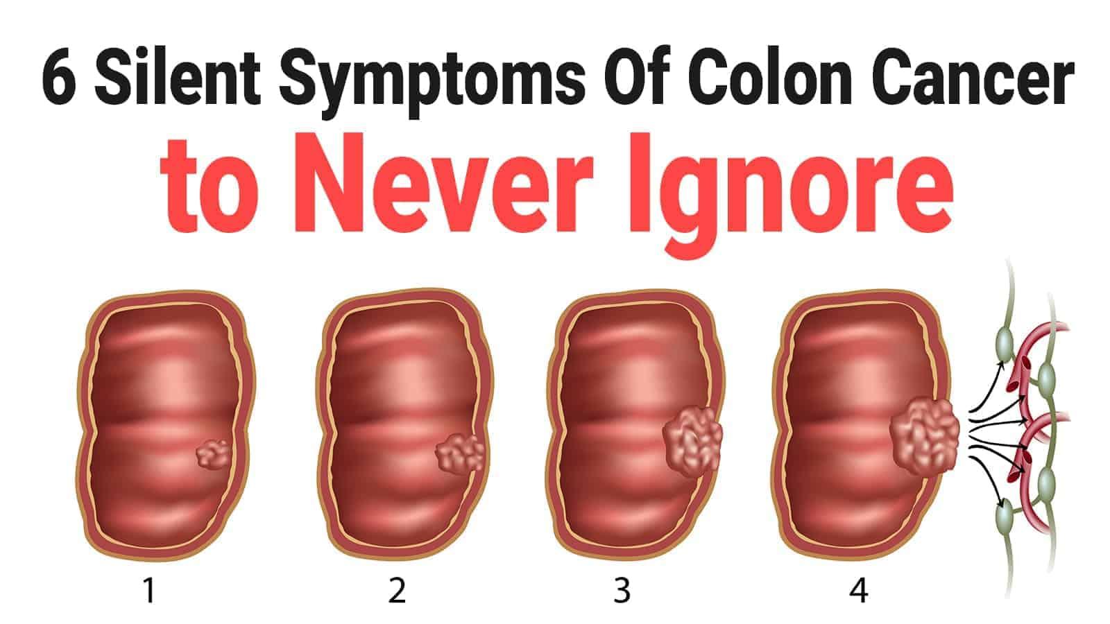 cancer colorectal femme symptomes reteta de vierme pentru paraziti