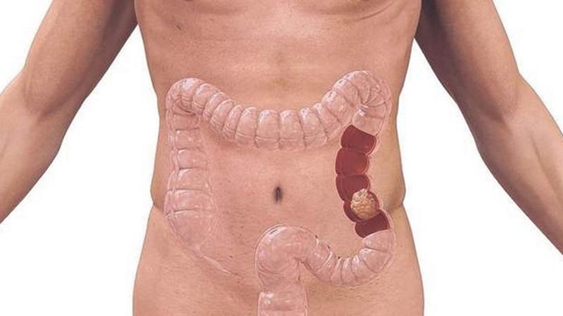 cancer de colon rectal simptome)
