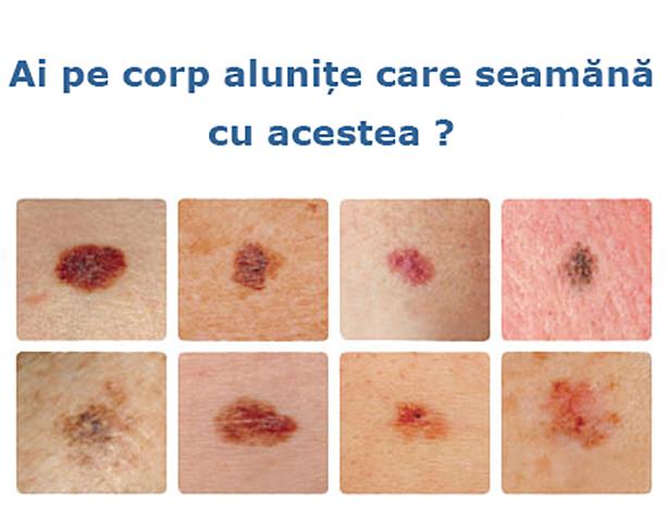 cancer de piele obraz)