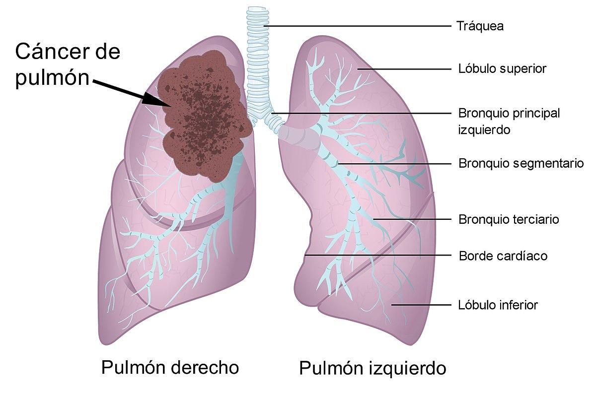 cancer de prostata benigno y maligno)