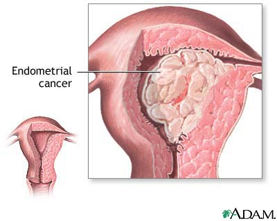 cancer endometrial tratament