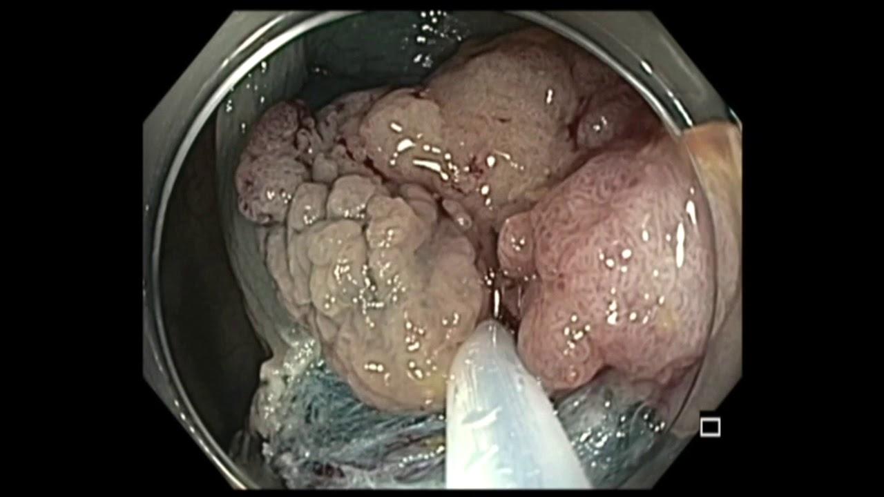 Cancer hepatic flexure, Venelor hepatice extensie