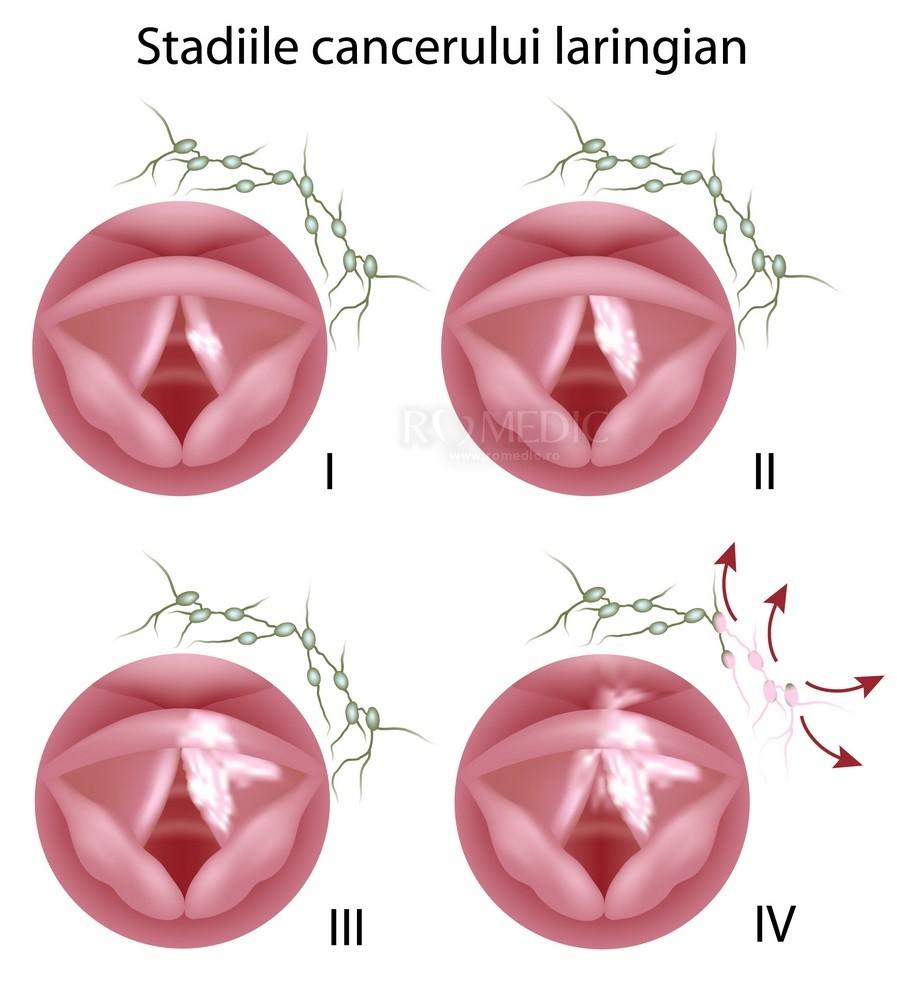 peritoneal cancer lymph nodes condiloame în buric
