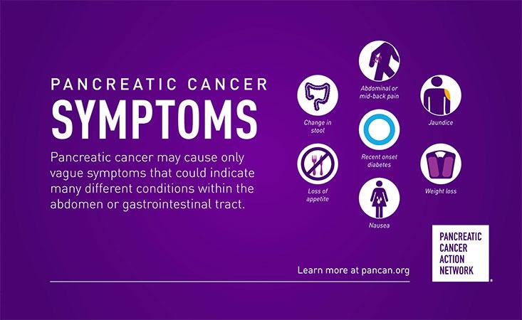 cancer pancreatic risk îndepărtarea unguentului papiloma