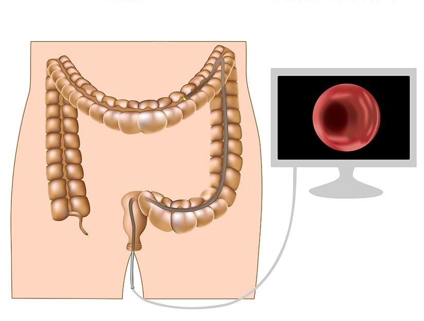 cancer de colon - lucrare