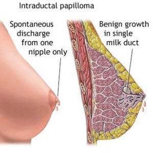 papilloma growth)