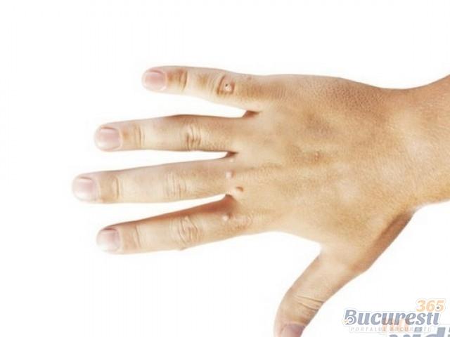 Condyloma Forum / Care este cel mai bun mod de a elimina verucile?