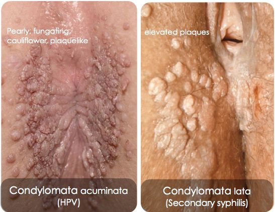 condyloma acuminata or genital warts)