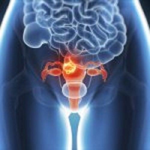 cum să ți detoxifiezi intestinele și colonul