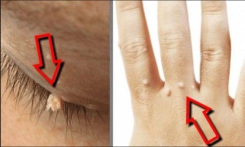 cum se tratează negii clotrimazol