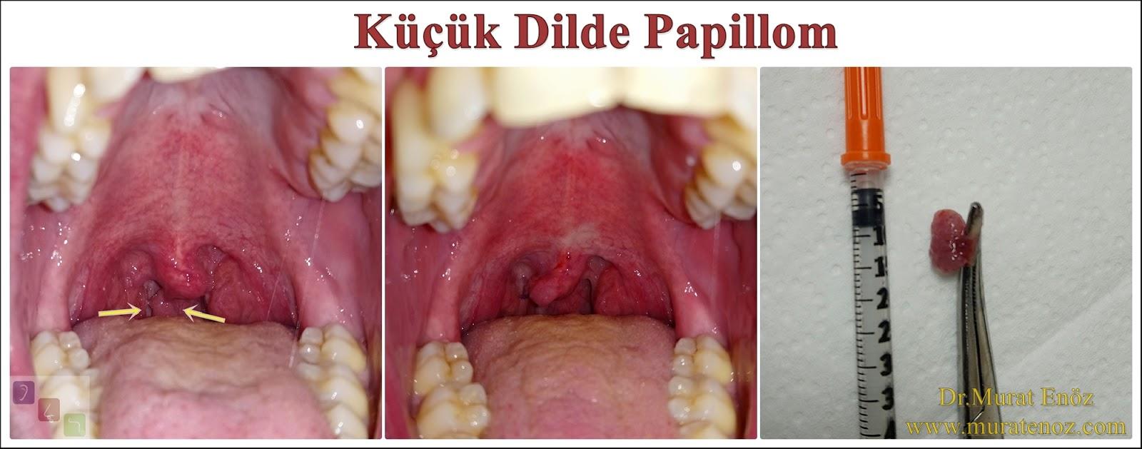 papilloma in uvula