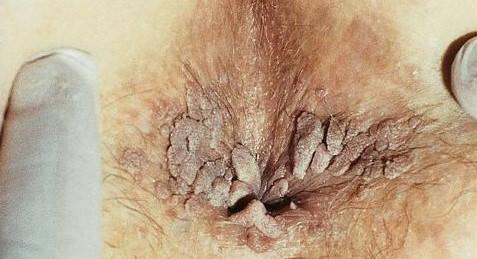 negi genitale la bărbații din anus)
