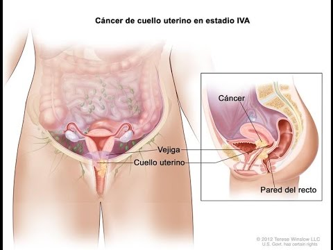 que es cancer in situ)