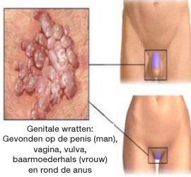 hpv virus man behandeling)