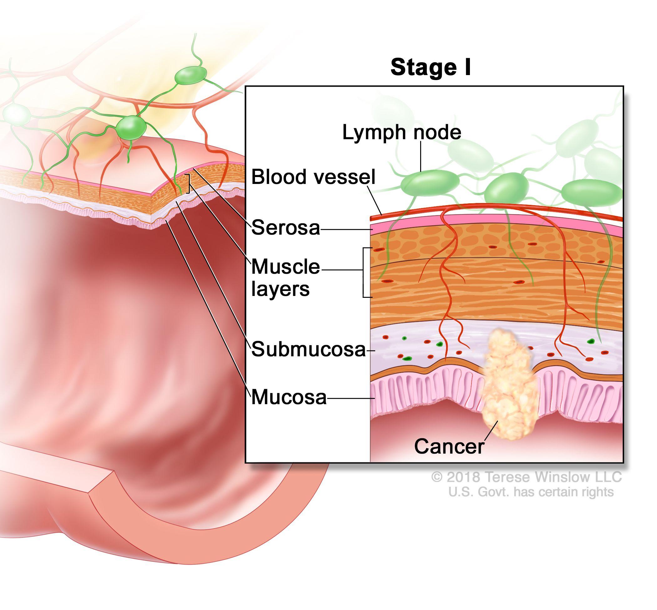 Rectal cancer lymph node metastasis.