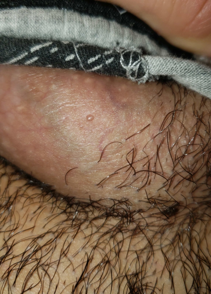 papule perlate sau condiloame)