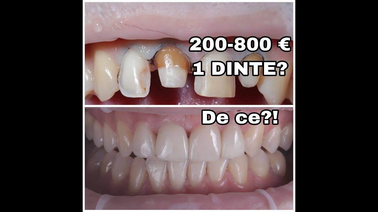 tratamentul dentar al paraziților)