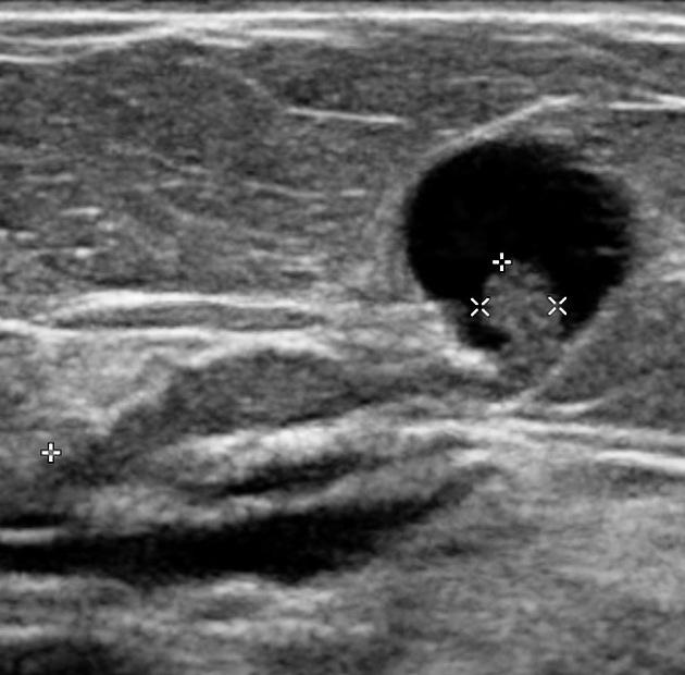 Papillomatosis bile duct - Recomandare clinică pentru diftilobotriază la copii