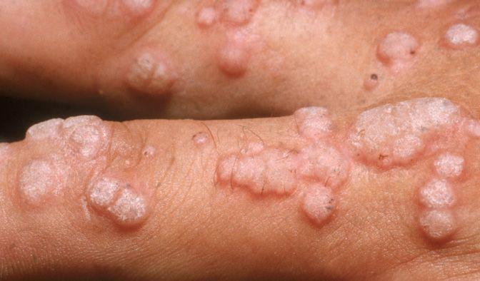 human papillomavirus disease)