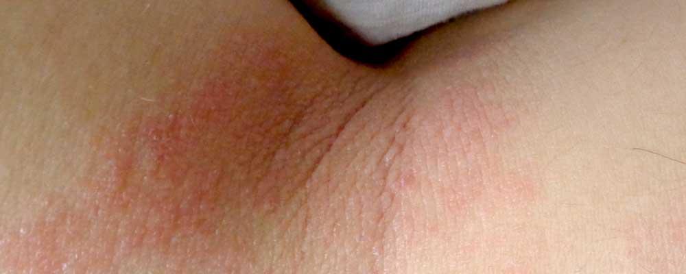 dermatita atopica)