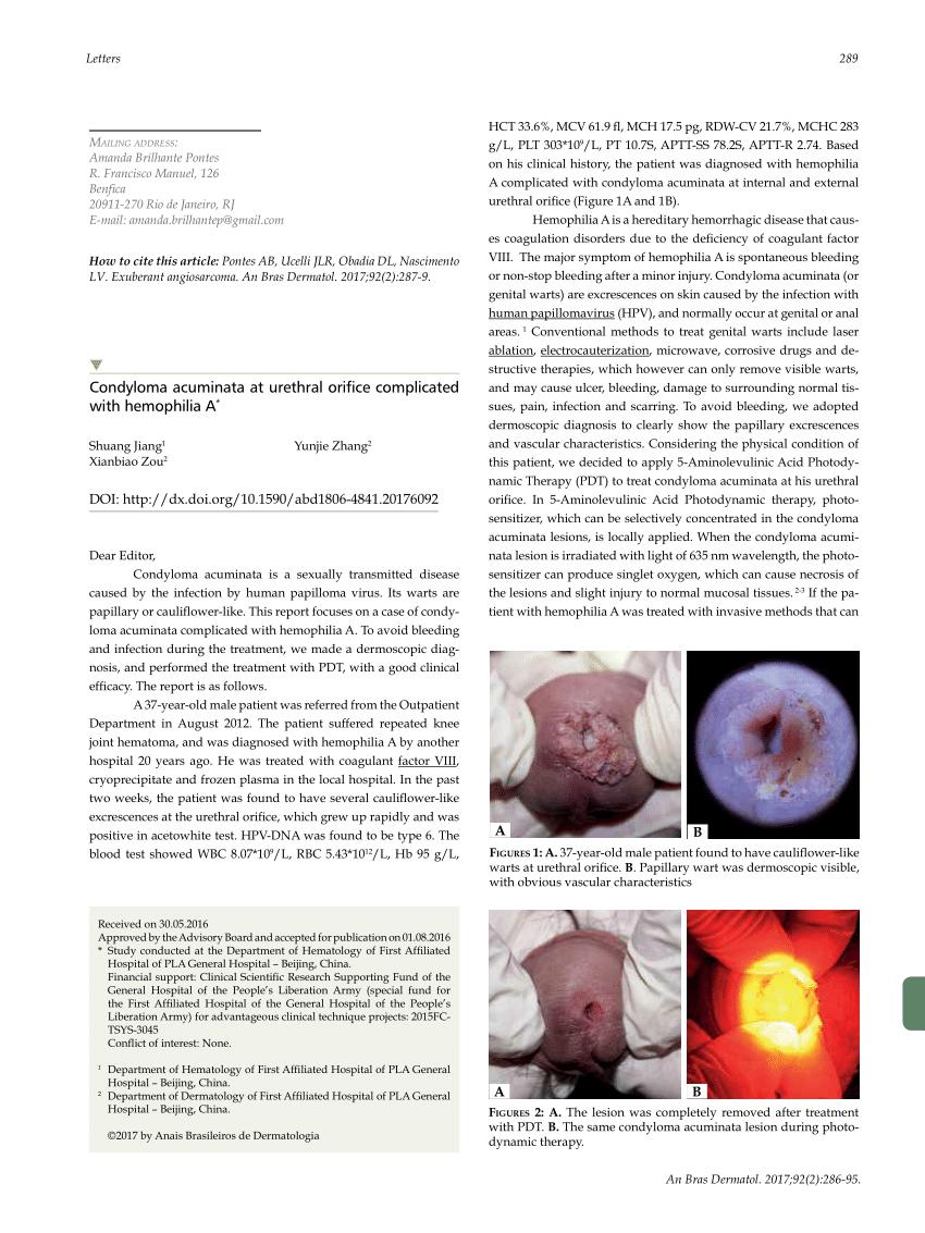 diagnostic de condilom)