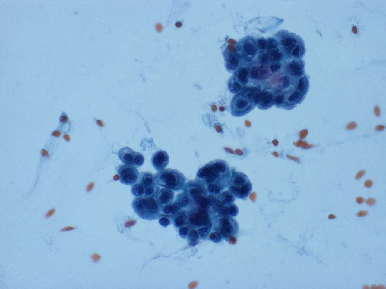duct papilloma cytology)