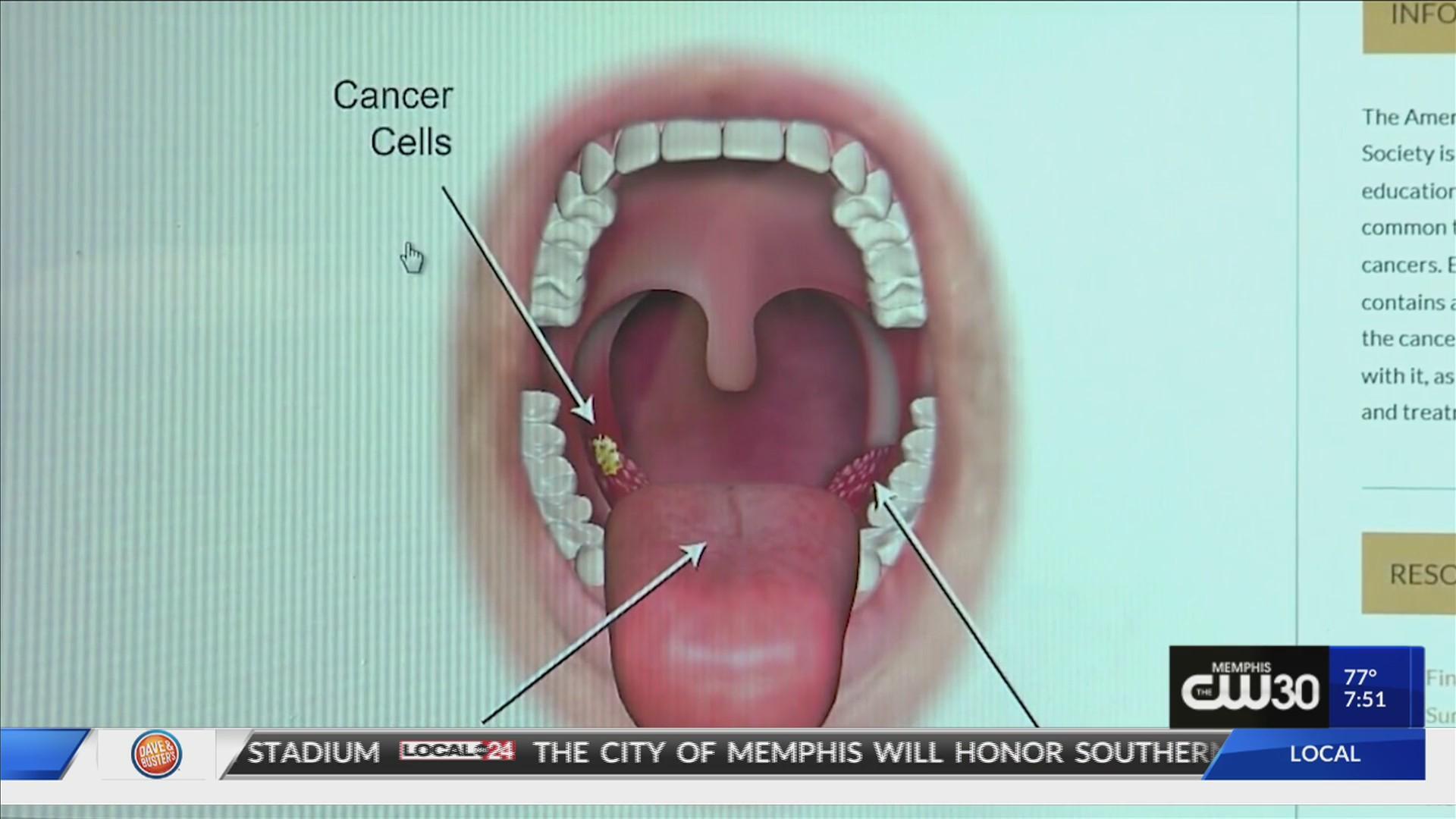 virusul papiloma este tratat cancerul de gat simptome