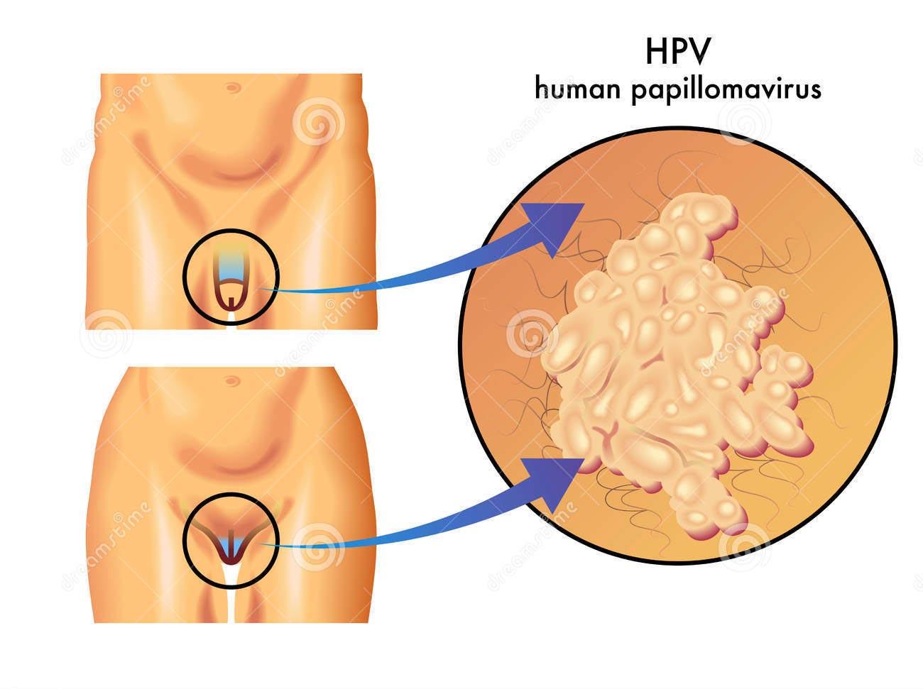 papilloma virus da bruciore)