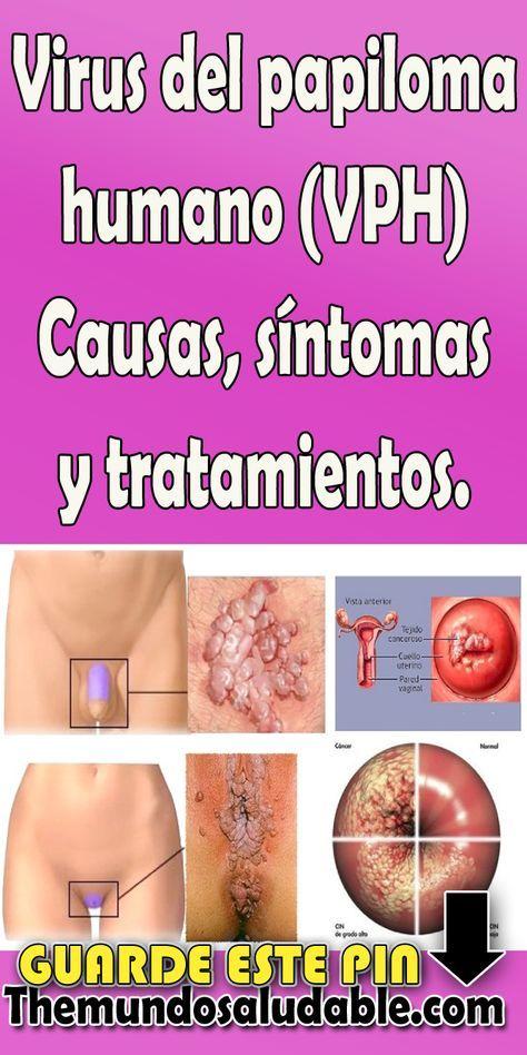 virus del papiloma sintomas y tratamiento