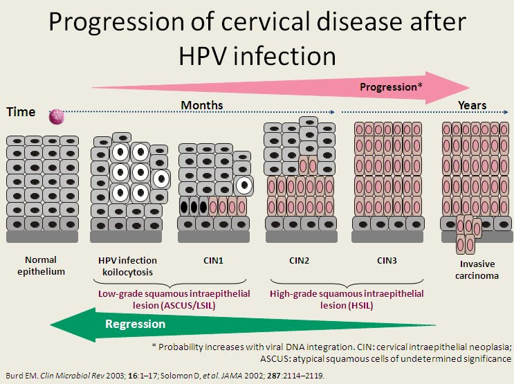 human papillomavirus infection and cancer)