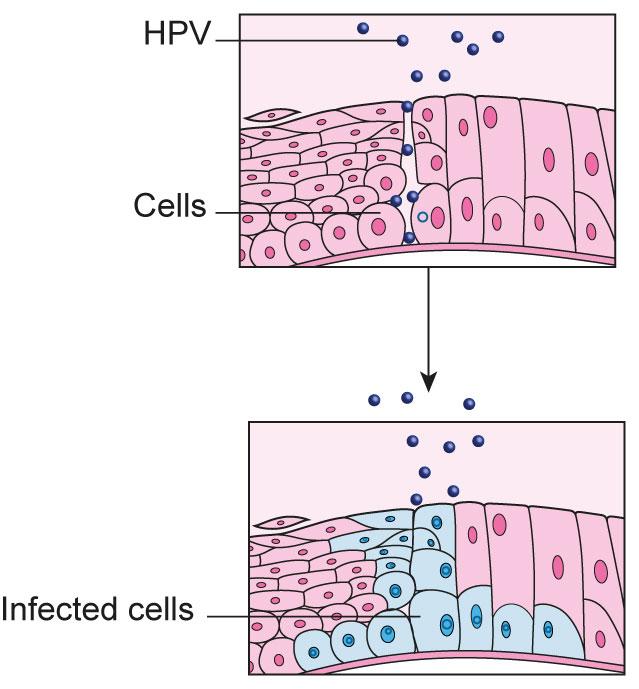 hpv become cancer este posibil să se retragă papilomul