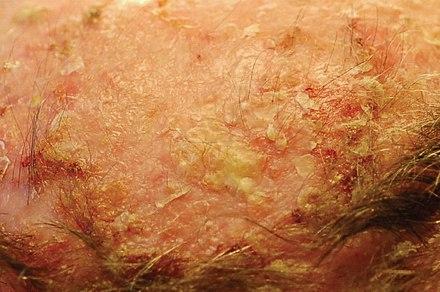 papilloma virus keratosis
