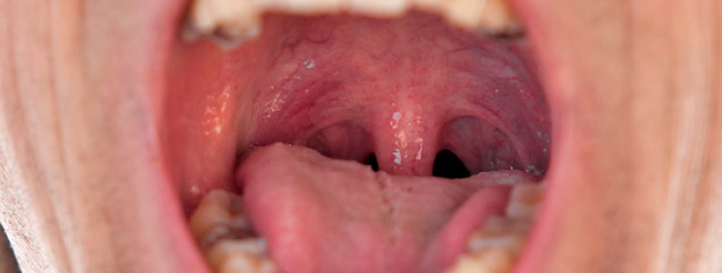 papiloma boca imagenes cure detox du colon