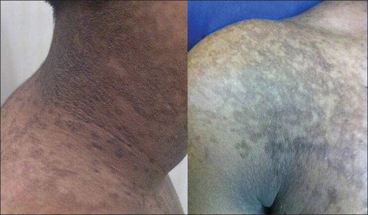 Papillomatosis reticularis behandlung