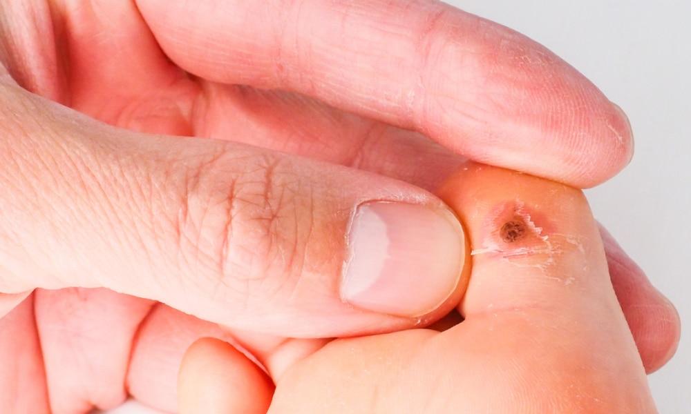 hpv mouth herpes elimina viermii din pastilele oamenilor