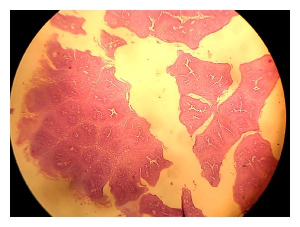 squamous papilloma uvula pathology