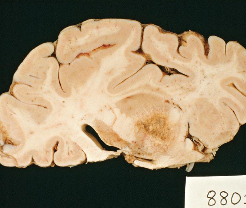 paraziti in creierul uman