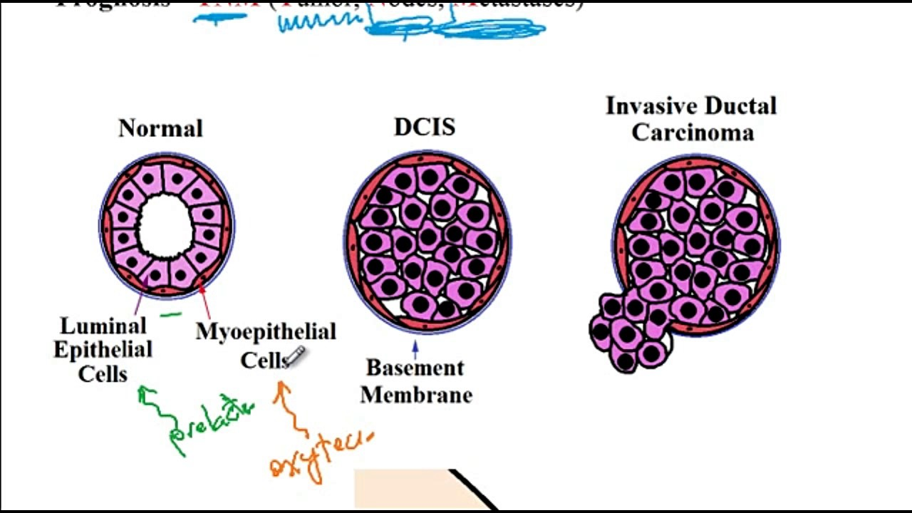 un antigen pozitiv pentru râme împotriva medicamentelor cu vierme rotunde