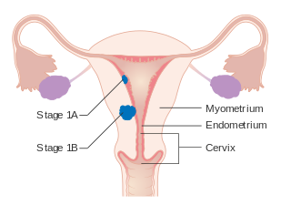 endometrial cancer of the lungs)