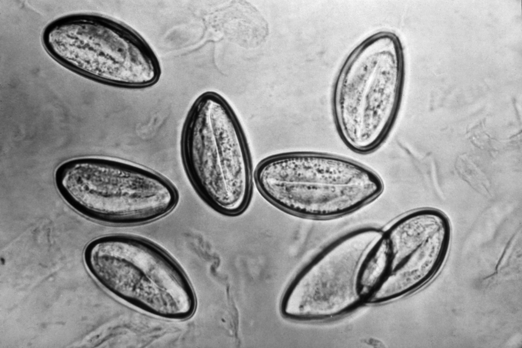 enterobius vermicularis glista)