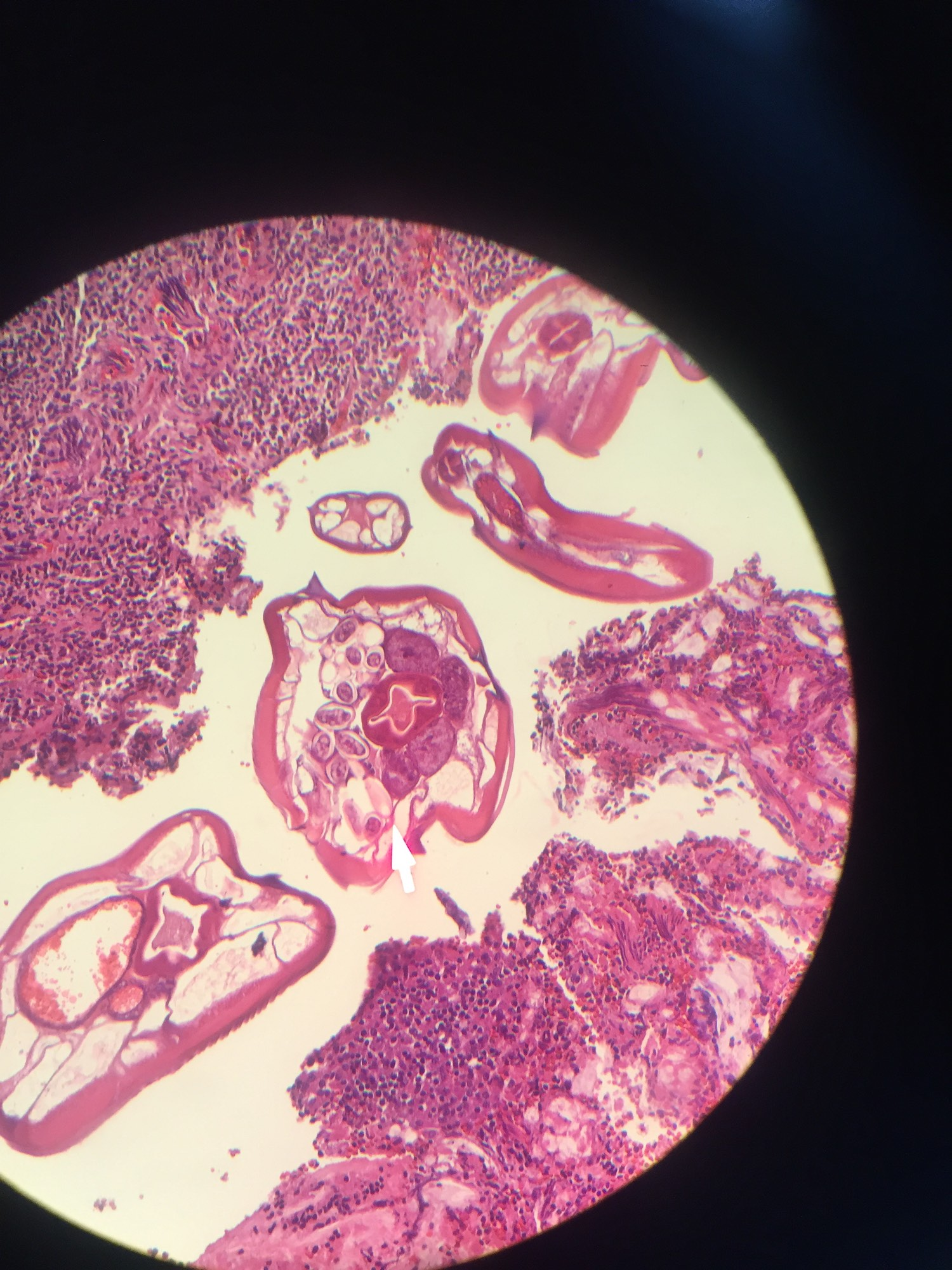 Enterobius vermicularis yumurtas,