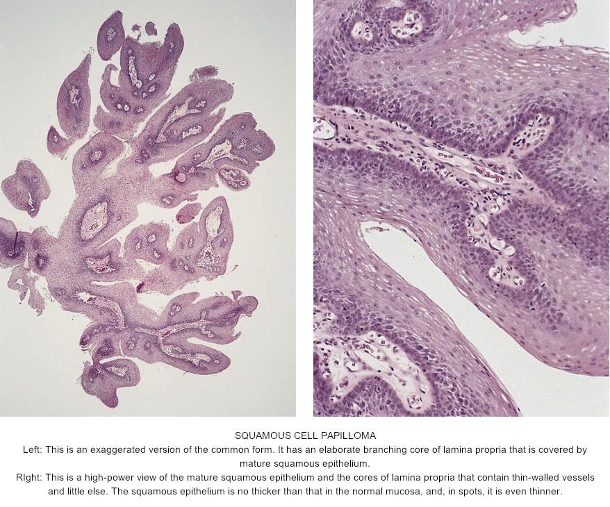 esophagus papilloma histology