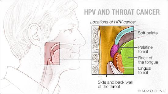 hpv virus negatif