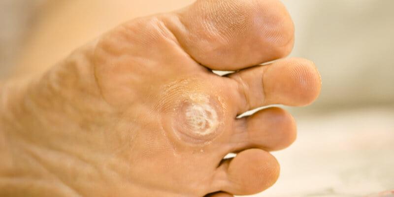 que es papiloma en los pies simptome de detoxifiere a corpului